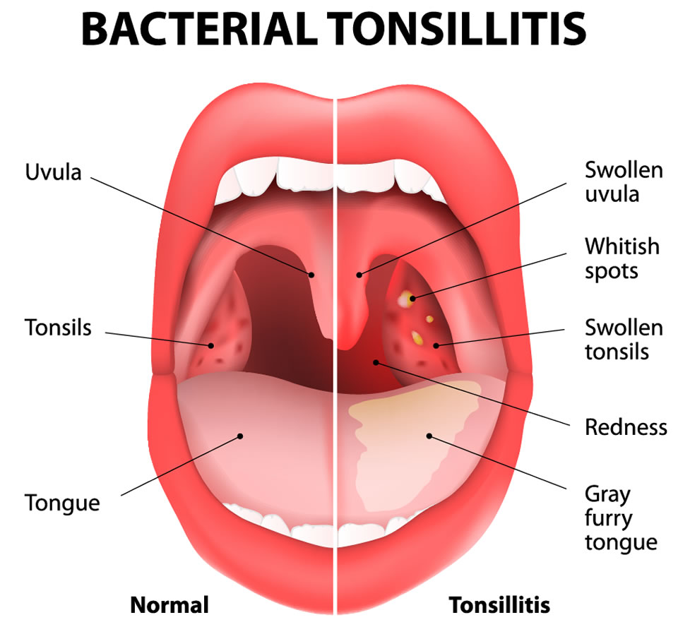 Tonsils And Adenoids Mr George Murty